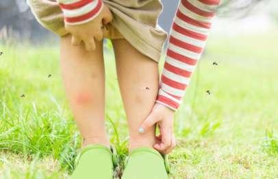 punture di insetto